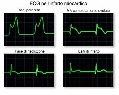 elettrocardiogramma (ECG) - infarto