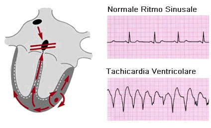 Ritmo cardiaco - ECG