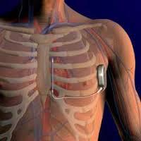 Defibrillatore impiantabile