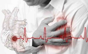 Infarto ed elettrocardiogramma