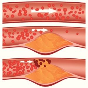 Ostruzione arterie colesterolo