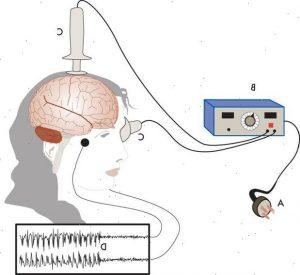 Terapia elettroconvulsivante